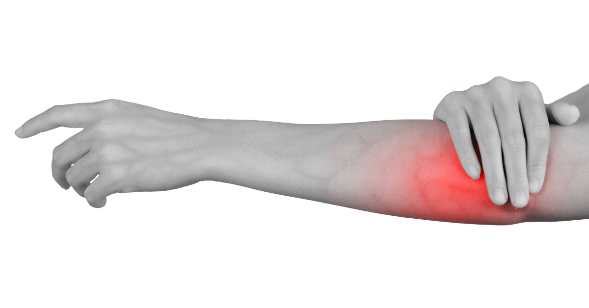 Ulnar Nerve Entrapment, What Is It?